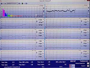 Neurofeedback Messung Hypnose Hypnocranios